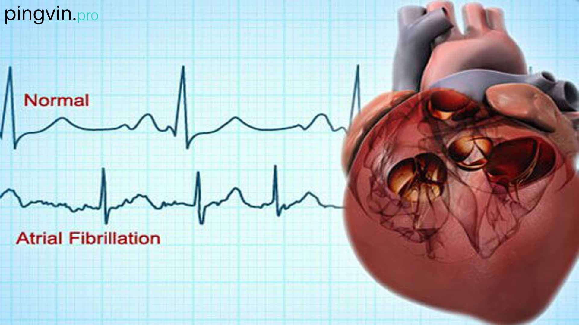 Дослідження показало, що Apple Watch можуть виявити проблеми з серцем