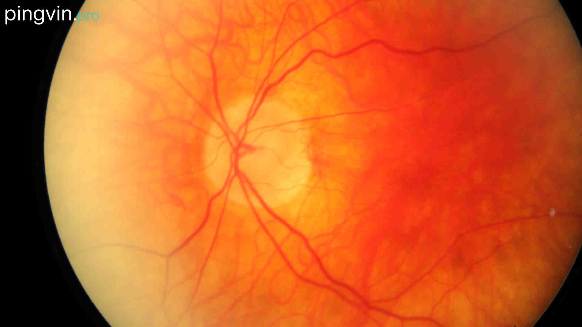 Сітківка ока