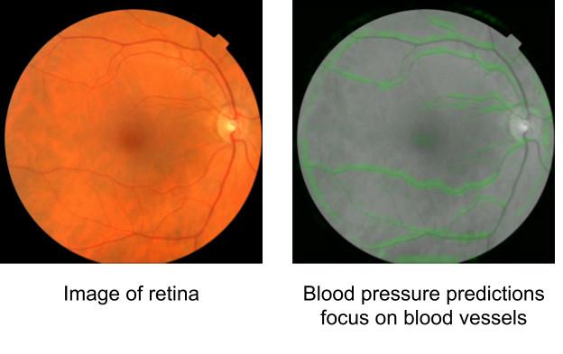 Штучний інтелект: сітківка ока
