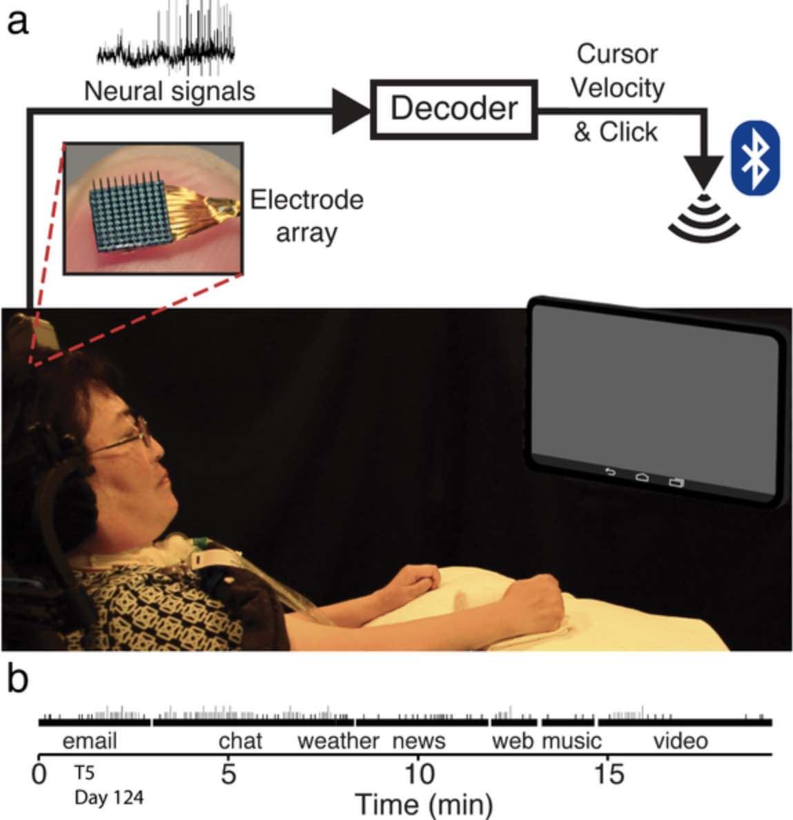 Нейроінтерфейс допоміг паралізованим людям користуватися планшетом