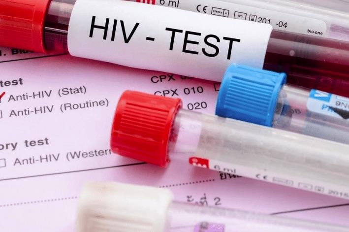 Вчені винайшли метод діагностування ВІЛ смартфоном