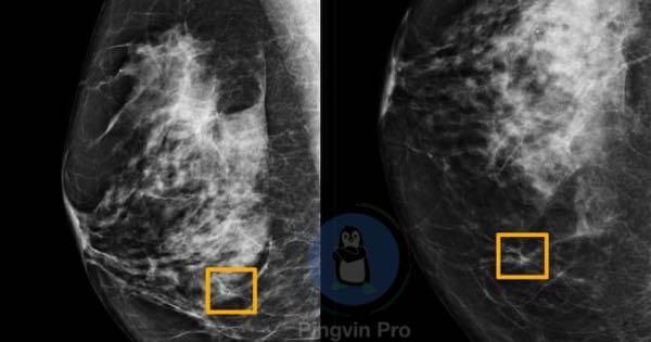 Google створив новий штучний інтелект для виявлення раку молочної залози